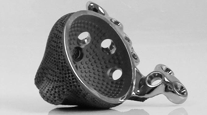 Mobelife-Implant